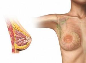 Woman breast cutaway diagram.
